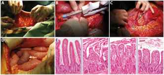 Ischemia-reperfusion damage in digestive tract and liver